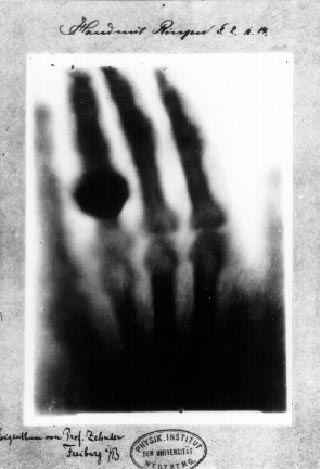 Discovery of X-rays by Wilhelm Roentgen in 1895